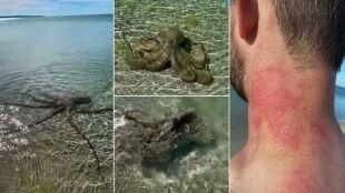 """""""Byłem zszokowany i zdezorientowany"""". Ośmiornica zaatakowała pływaka"""